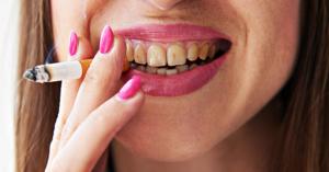 Impact Of Smoking On Oral Health